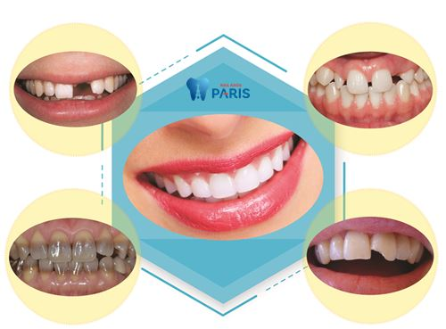 Bọc mão răng sứ - VĨNH BIỆT răng xấu cho nụ cười rạng rỡ đón TẾT 2
