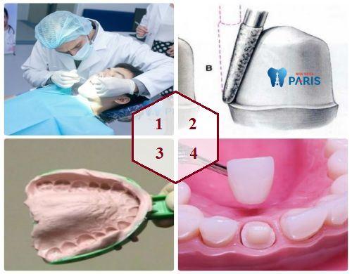 CÓ NÊN hay KHÔNG NÊN làm chụp sứ cho răng thưa? BS tư vấn 2
