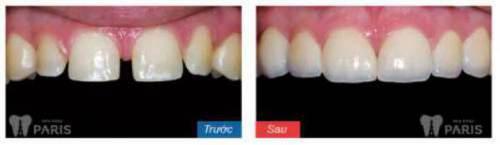 CÓ NÊN hay KHÔNG NÊN làm chụp sứ cho răng thưa? BS tư vấn 4