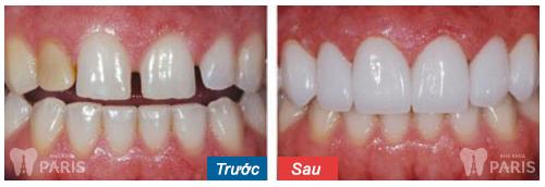 CÓ NÊN hay KHÔNG NÊN làm chụp sứ cho răng thưa? BS tư vấn 3