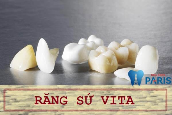 Bọc răng sứ Vita có tốt không? Bảng so sánh với dòng răng sứ khác 1
