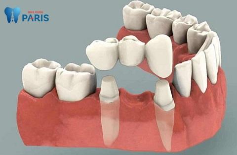 Làm cầu răng sứ duy trì được bao lâu?