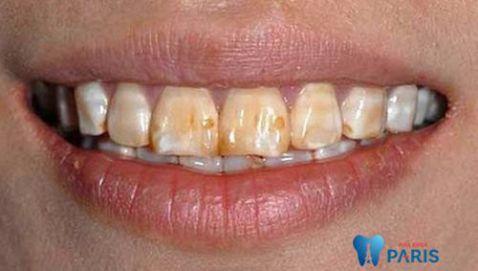 Thiếu sản men răng và 2 cách khắc phục thiếu sản men răng hiệu quả 1