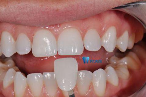 Thiếu sản men răng và 2 cách khắc phục thiếu sản men răng hiệu quả 3