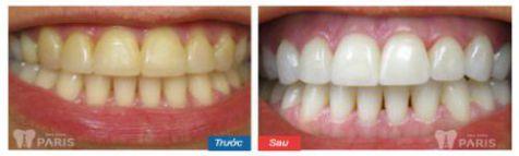 Thiếu sản men răng và 2 cách khắc phục thiếu sản men răng hiệu quả 5