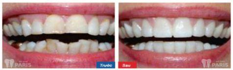 Thiếu sản men răng và 2 cách khắc phục thiếu sản men răng hiệu quả 6