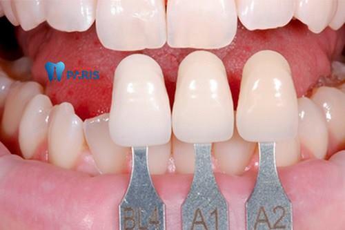 răng toàn sứ Cercon3