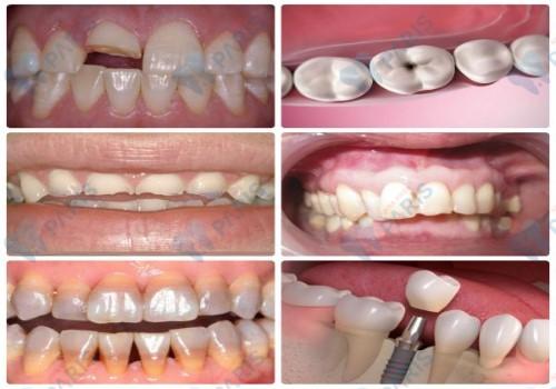 Răng sứ không kim loại - Đỉnh cao của công nghệ bọc răng sứ hiện nay 2
