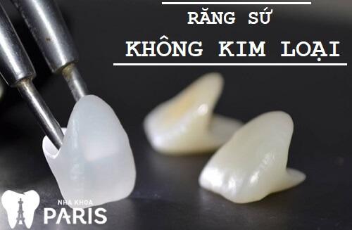 Răng sứ không kim loại - Đỉnh cao của công nghệ bọc răng sứ hiện nay 1