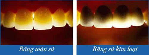8 Ưu điểm bọc răng sứ không kim loại giúp răng chắc gấp 4 lần 5