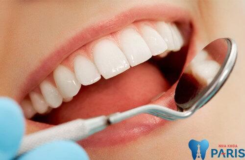 Răng sứ không kim loại - Đỉnh cao của công nghệ bọc răng sứ hiện nay 7