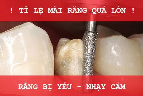 Tìm hiểu về những tác hại của bọc răng sứ sai cách 1