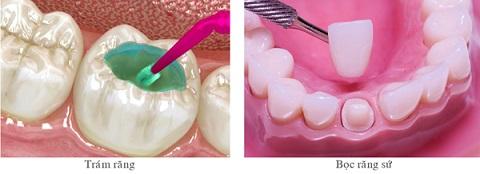 2 phương pháp làm răng khểnh phổ biến hiện nay
