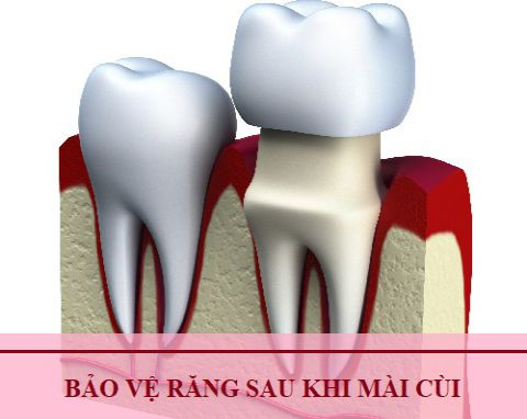 Kỹ thuật mài cùi răng đúng CHUẨN TỈ LỆ an toàn KHÔNG ê buốt 4