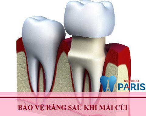 Giải đáp thắc mắc: Mài răng cho ngắn lại liệu có đau hay không? 2