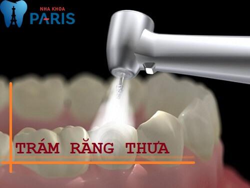 Răng thưa dần – Nguyên nhân và cách điều trị hiệu quả triệt để 2