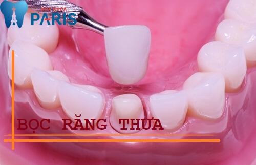 Răng thưa dần – Nguyên nhân và cách điều trị hiệu quả triệt để 4