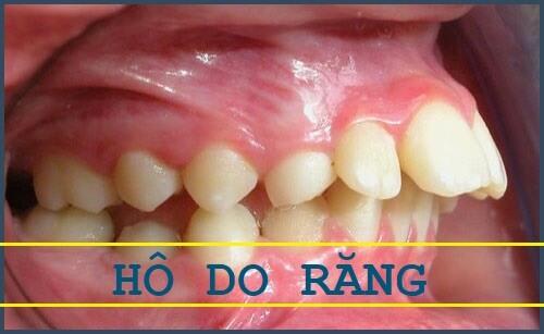 Cách làm răng hết hô hiệu quả nhất được nhiều người áp dụng