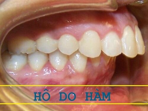 3 dạng răng hô và 4 cách làm răng hết hô phổ biến nhất hiện nay 2