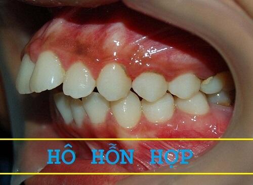 3 dạng răng hô và 4 cách làm răng hết hô phổ biến nhất hiện nay 3
