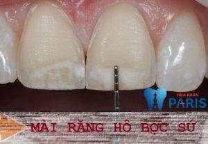 Mài răng cửa có ảnh hưởng gì không? Có đau không? 1