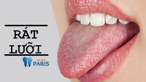 Rát lưỡi - Nguyên nhân, biểu hiện và cách khắc phục hiệu quả 1