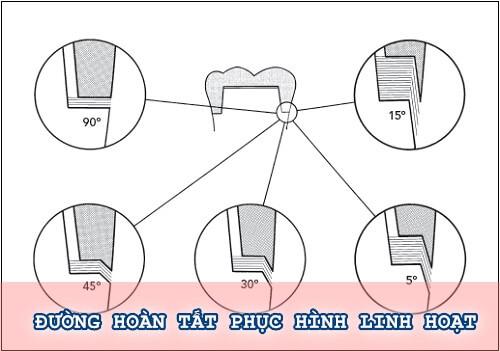 """5 nguyên tắc """"VÀNG"""" để mài cùi răng ĐẸP an toàn không ê buốt 3"""