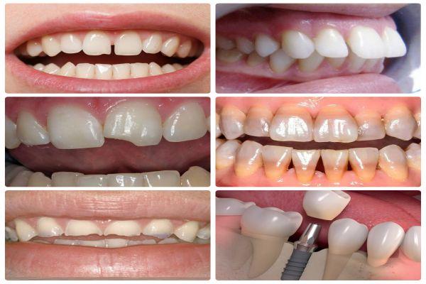 Chụp răng sứ Nano Shining 5s Bền - Đẹp - Nhanh Chóng - Giá Tốt 2