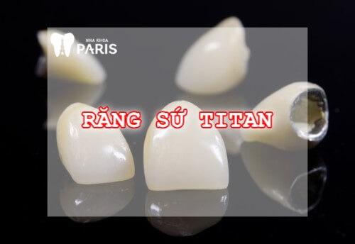 Bọc răng sứ titan - Khắc phục răng thưa, mẻ, xỉn màu,... độ bền 20 năm 1