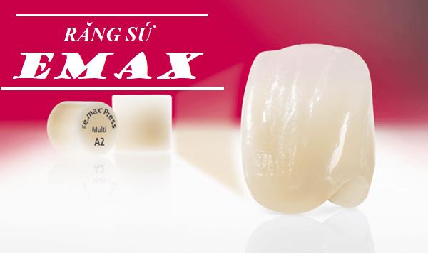 Răng sứ Emax - 5 Ưu điểm vượt trội mà không loại răng nào sánh kịp 1