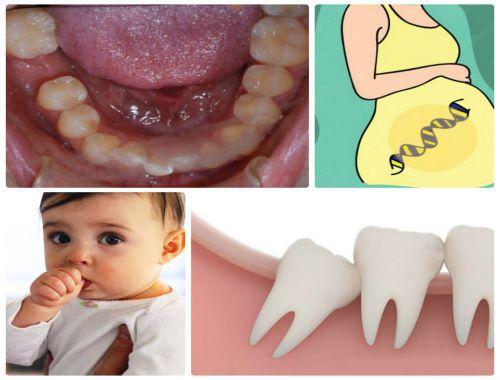 Răng cửa mọc lệch ra ngoài – Nguyên nhân và biện pháp khắc phục 1