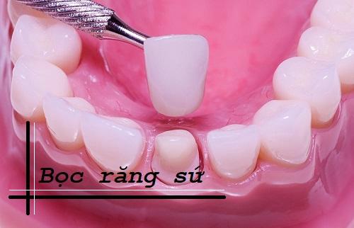 Răng cửa mọc lệch ra ngoài – Nguyên nhân và biện pháp khắc phục 3