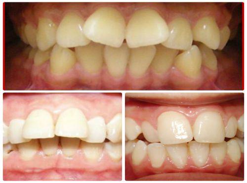 Răng cửa bị lệch - Nguyên nhân và cách điều trị hiệu quả 1