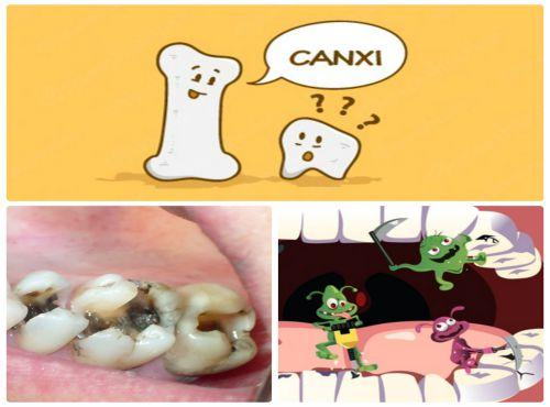 2 nhóm nguyên nhân răng bị mẻ thường gặp nhất và cách khắc phục 2
