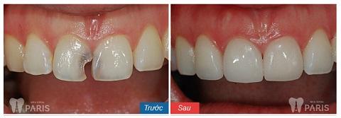 Hàm răng trắng sáng, đều đặn hơn sau khi bọc răng sứ