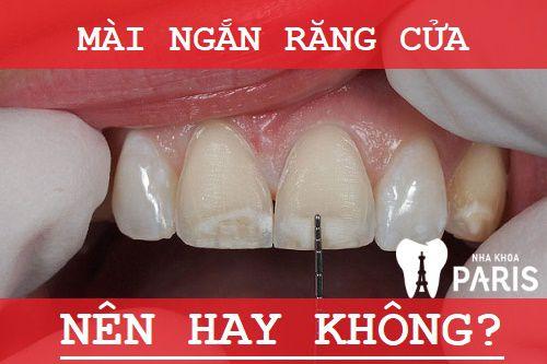 Có nên mài ngắn răng cửa dài và to hay không? Chuyên gia tư vấn 1