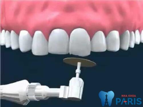 Quy trình mài răng bọc sứ Chuẩn Quốc Tế chính xác tuyệt đối 3