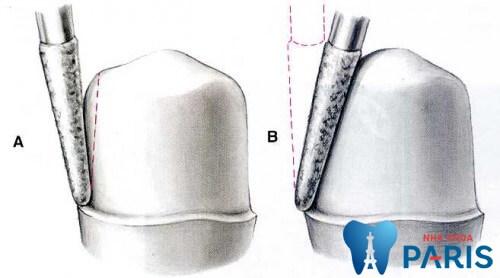 Quy trình mài răng bọc sứ Chuẩn Quốc Tế chính xác tuyệt đối 4