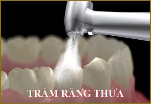 Răng thưa nên làm gì? So sánh 3 cách khắc phục răng thưa phổ biến nhất 1