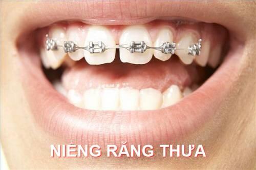 Răng thưa nên làm gì? So sánh 3 cách khắc phục răng thưa phổ biến nhất2