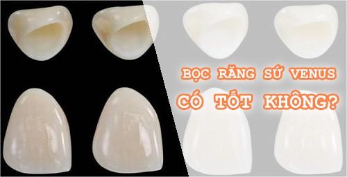 Răng sứ venus là gì? Răng sứ venus có tốt như răng sứ Cercon không? 2