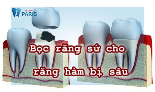 Bọc sứ răng sâu và những lưu ý không thể bỏ qua 1