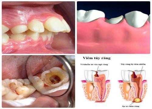 Bọc răng sứ có phải lấy tủy không? Chuyên gia tưvấn