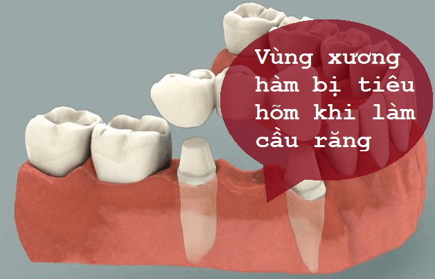 Những điều cần biết về ưu - nhược điểm của làm cầu răng 2
