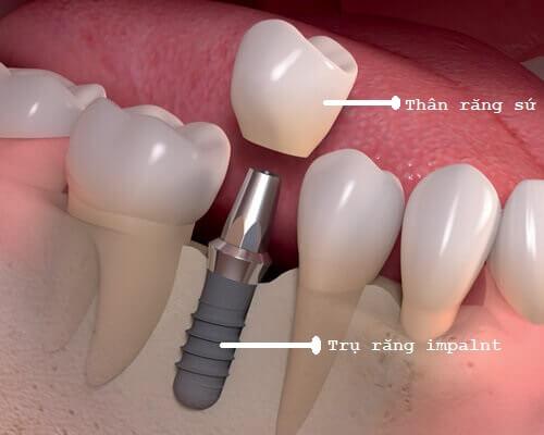 Những điều cần biết về ưu - nhược điểm của làm cầu răng 3