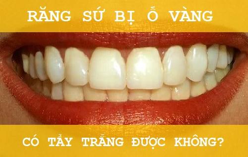 Răng sứ bị ố vàng có thể tẩy trắng lại được không? 1