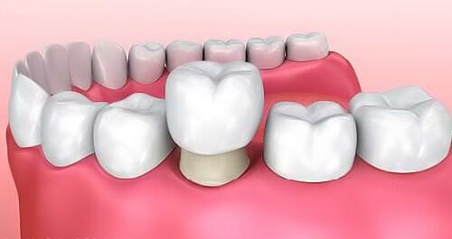 Răng sứ bị ố vàng có thể tẩy trắng lại được không? 2