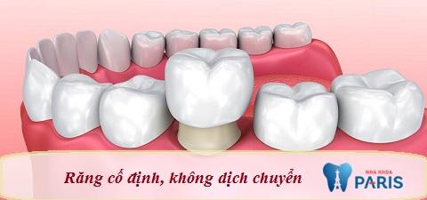Răng sứ cố định, không bị dịch chuyển
