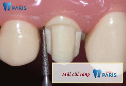 Mài cùi răng - Bước quan trọng trong quá trình bọc răng sứ