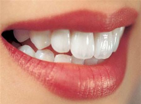 Răng sứ ceramill là gì? Tìm hiểu từ A - Z về răng sứ ceramill 3